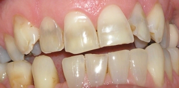 Repaired Worn Incisors