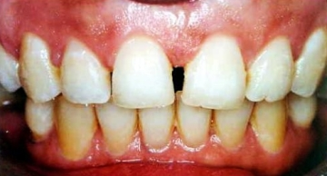 Aligned Upper Incisors